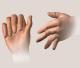 Identificado processo responsável pela degradação óssea em fumantes com artrite reumatoide